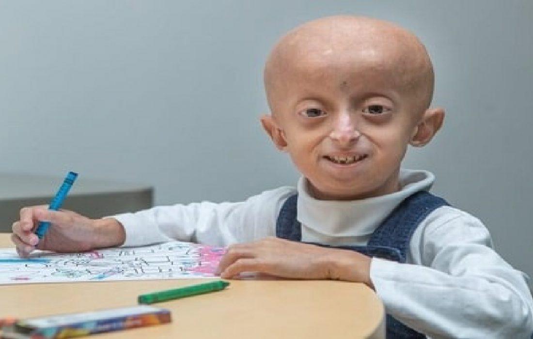 دختربچه ۱۰ ساله بر اثر پیری درگذشت + عکس