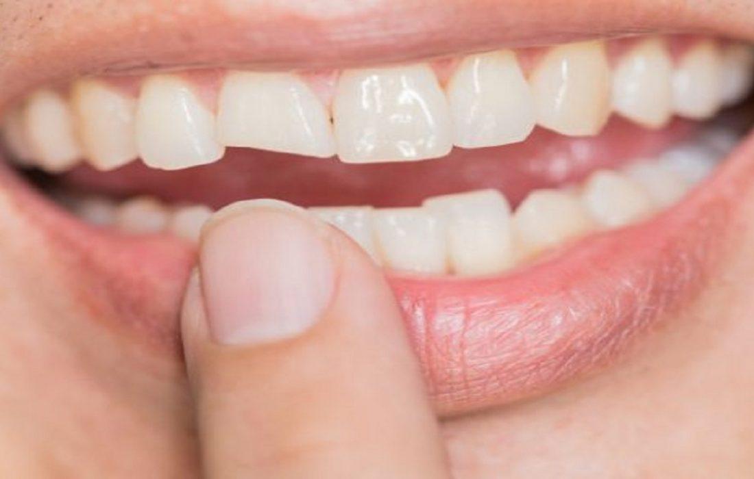 با خوردن این خوراکی، دندانهایتان سریع خراب میشود